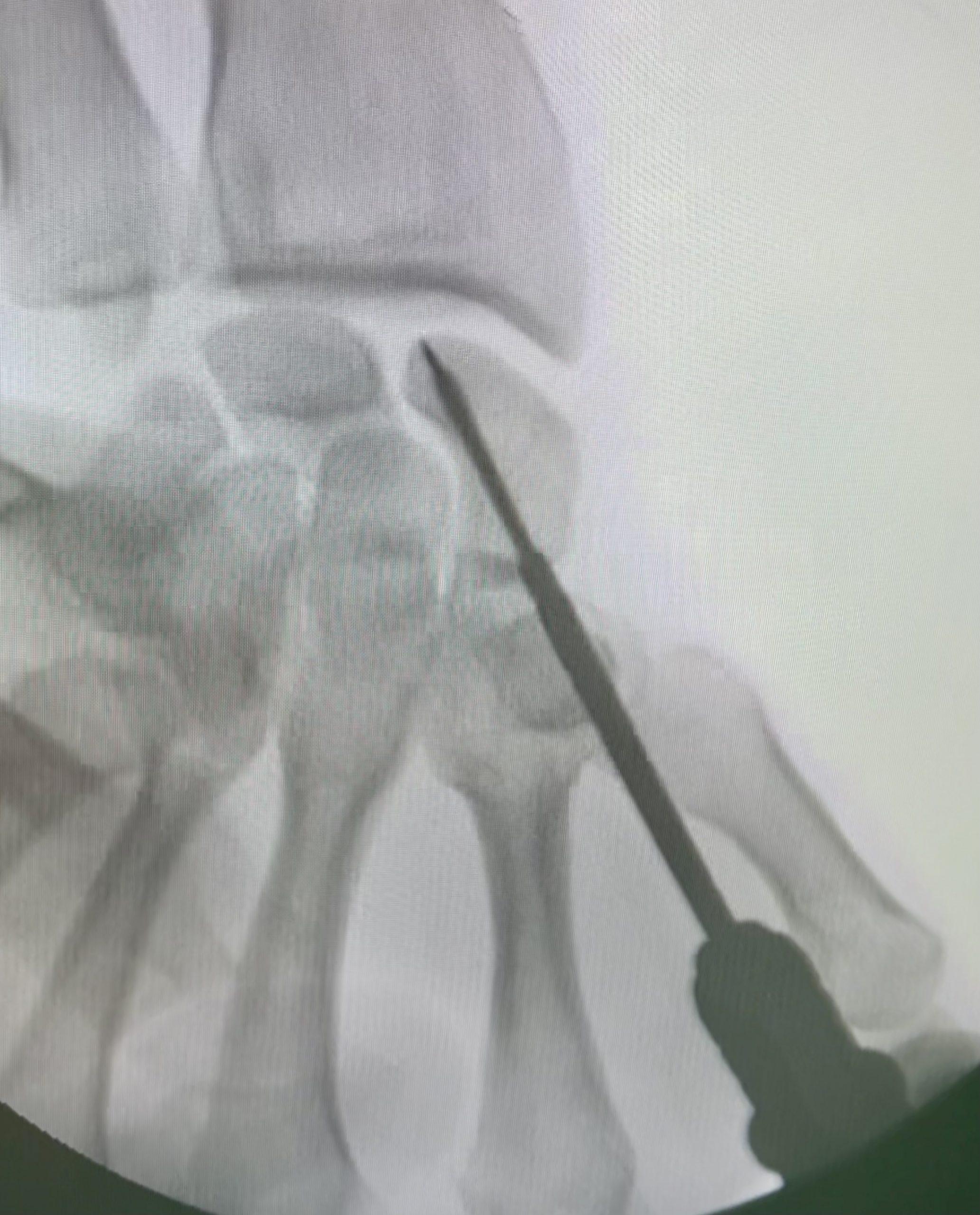 Prelomi skafoidne kosti