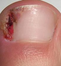 Hipertrofija mekih tkiva oko lateralne ivice